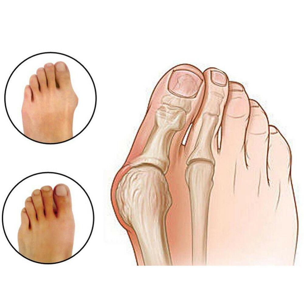 Best 1 x Pair Bunion Splint Corrector Hallux Valgus-Straightener Toe Separator Support
