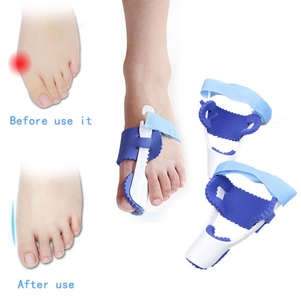 1 x Pair Bunion Splint Corrector Hallux Valgus-Straightener Toe Separator Support Reviews