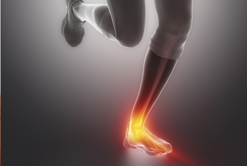 Read Causes of Achilles Tendonitis and Ankle Pain