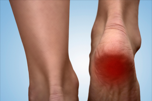 Read Best Plantar Fasciitis Excercises